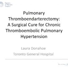 2018-10-02 Pulmonary Thomboendarterectomy - Donahoe