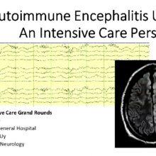 2019-04-09 Autoimmune Encephalitis Update - Uy