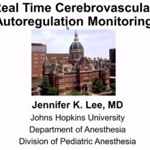 2019-06-11 Real Time Cerebrovascular Autoregulation Monitoring - Lee